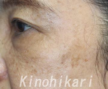 樹のひかり 形成外科・皮ふ科のシミ取り・肝斑・毛穴治療の症例写真[アフター]
