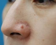 のホクロ除去・あざ治療・イボ治療の症例写真[ビフォー]