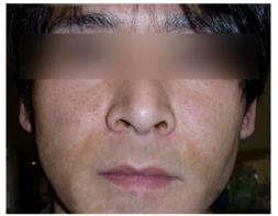 ホホの脂肪注入の症例写真[アフター]