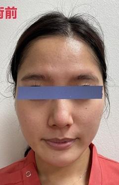 くみこクリニック 京都四条烏丸院のシミ取り・肝斑・毛穴治療の症例写真[ビフォー]
