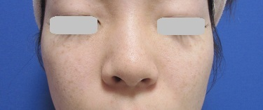 そばかす・シミ治療(フォトRF SR)の症例写真[アフター]