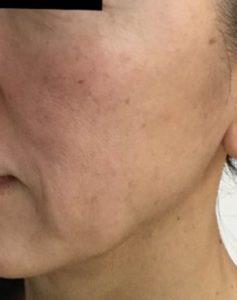 とみ皮膚科クリニックのシワ・たるみ(照射系リフトアップ治療)の症例写真[ビフォー]