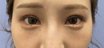 湘南美容クリニック 銀座院の目・二重整形の症例写真[アフター]