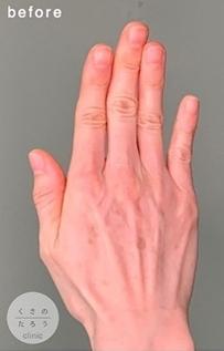 くさのたろうクリニックのアンチエイジング・美容点滴の症例写真[ビフォー]