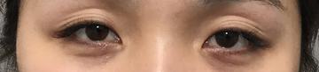 TCB東京中央美容外科 堺院の目・二重整形の症例写真[ビフォー]