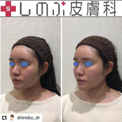 ヒアルロン酸カスタマイズ4本+鼻の症例写真