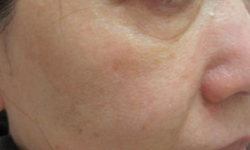 エルクリニックのシミ取り・肝斑・毛穴治療の症例写真[アフター]