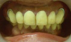 入れ歯治療の症例写真の症例写真[ビフォー]
