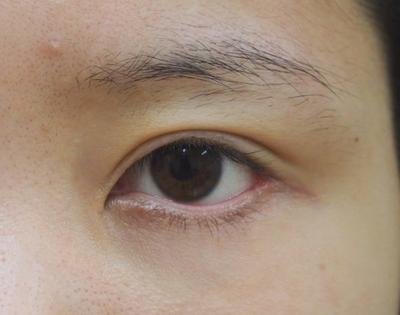 他院垂れ目形成手術後修正(植皮)の症例写真[ビフォー]