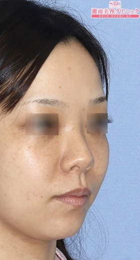 湘南美容クリニック品川院の鼻の整形の症例写真[ビフォー]