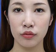 オザキクリニックLUXE新宿の口もと、唇の整形の症例写真[アフター]