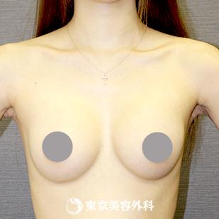 東京美容外科の豊胸手術(胸の整形)の症例写真[アフター]
