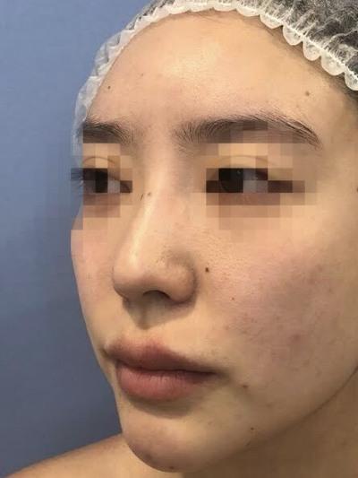 鉄医師による鼻の複合手術の症例写真[ビフォー]