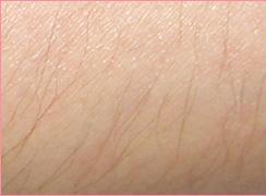 ■レーザー脱毛(ヒジ下)の症例写真[ビフォー]
