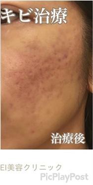 西宮SHUHEI美容クリニックのニキビ治療・ニキビ跡の治療の症例写真[アフター]