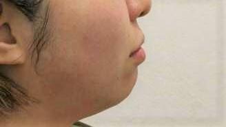 ウィクリニック 大宮院の輪郭・顎の整形の症例写真[ビフォー]