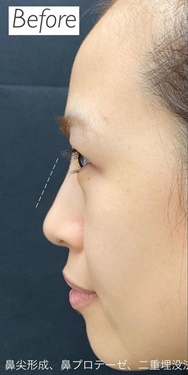 銀座ゼロクリニックの鼻の整形の症例写真[ビフォー]