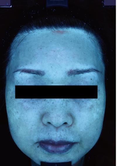 肝斑治療(ピコトーニング)の症例写真[アフター]
