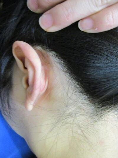 医療脱毛・レーザー脱毛の症例写真[アフター]