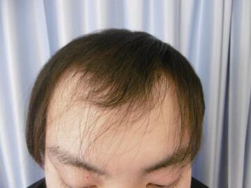 鹿児島三井中央クリニックの薄毛治療・AGA・発毛の症例写真[アフター]