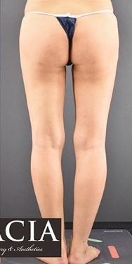 GRACIA clinic(グラシアクリニック)の脂肪吸引の症例写真[アフター]