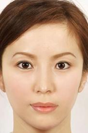 リッツ美容外科 大阪院の顔の整形(輪郭・顎の整形)の症例写真[アフター]