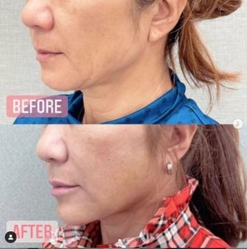 東京美容外科 福岡院の顔のしわ・たるみの整形の症例写真