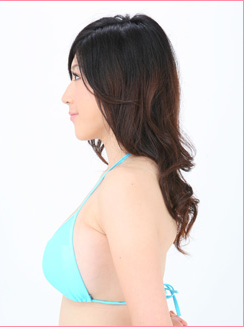 ■豊胸(人工乳腺法)の症例写真[アフター]