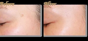 ブリスクリニックのシミ治療(シミ取り)・肝斑・毛穴治療の症例写真