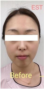 エストクリニックのニキビ治療・ニキビ跡の治療の症例写真[ビフォー]