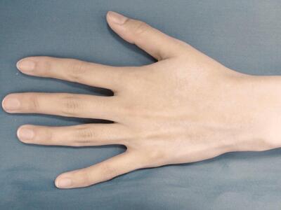 ひざ下・ひじ下・手指甲の脱毛の症例写真[アフター]
