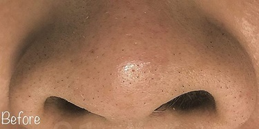 毛穴の開きと黒ずみ治療の症例写真[ビフォー]