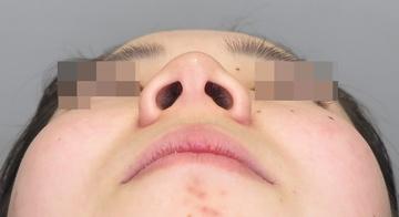 品川美容外科 渋谷院の鼻の整形の症例写真[ビフォー]