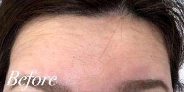 表参道スキンクリニックの顔のしわ・たるみの整形の症例写真[ビフォー]