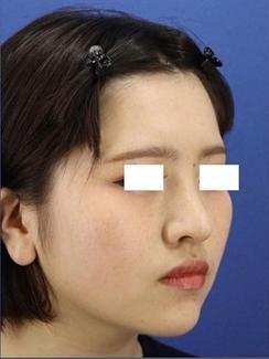 銀座長瀬クリニック 大阪院の鼻の整形の症例写真[アフター]