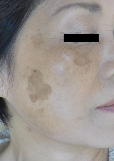 シミ治療:Q-YAGレーザーの症例写真[ビフォー]