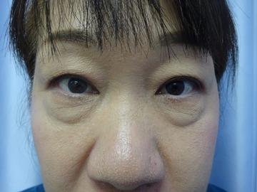 鹿児島三井中央クリニックの目元の整形、くま治療の症例写真[ビフォー]