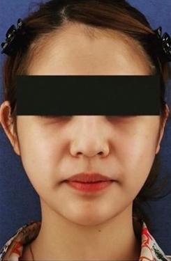 銀座長瀬クリニック 大阪院の顔のしわ・たるみの整形の症例写真[アフター]