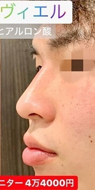 ルラ美容クリニック 高田馬場院の鼻の整形の症例写真[アフター]