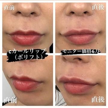 ルラ美容クリニックの口元・唇の整形の症例写真