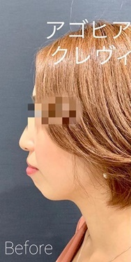ルラ美容クリニック高田馬場院の顔の整形(輪郭・顎の整形)の症例写真[ビフォー]