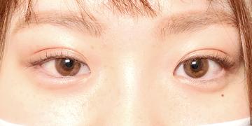湘南美容クリニック 新潟院の目・二重整形の症例写真[アフター]