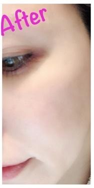 ノエル銀座クリニックのシミ治療(シミ取り)・肝斑・毛穴治療の症例写真[アフター]