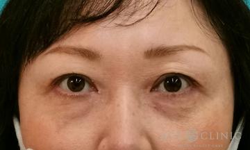 エースクリニック 名古屋院の目・二重整形の症例写真[アフター]