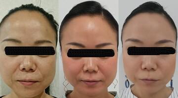 ウィクリニック 銀座院のシワ・たるみ(照射系リフトアップ治療)の症例写真