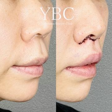 YBC横浜美容外科 大宮院の鼻の整形の症例写真