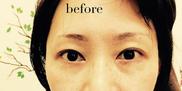 高輪皮膚科・形成外科【アートメイク・メディカルエステ専門】の症例写真[ビフォー]