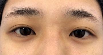 湘南美容クリニック 川崎院の目・二重の整形の症例写真[ビフォー]