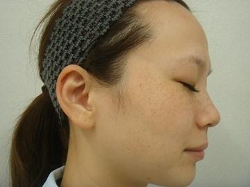 のシミ治療(シミ取り)・肝斑・毛穴治療の症例写真[ビフォー]