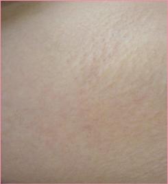 ■レーザー脱毛(ワキ)の症例写真[アフター]